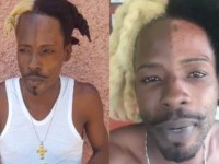 Dancehall Artiste SKP Bleached Half His Face Sparks Outraged