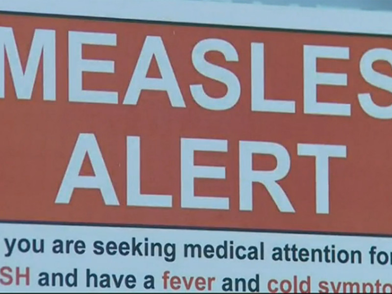 Jamaican travellers urged to take precautions against measles