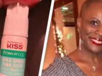 Woman Nearly Lost Her Sight After She Mistakenly Used Nail Glue for Eye Drops